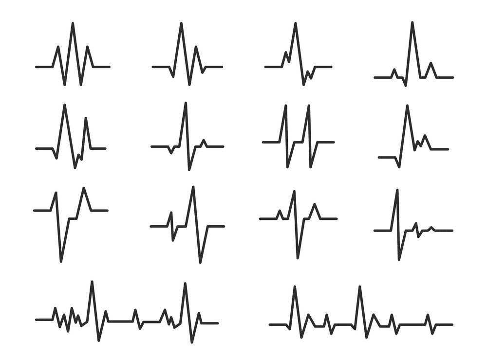 Heartbeat clipart free 1