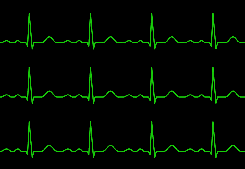 Heartbeat line clipart 7