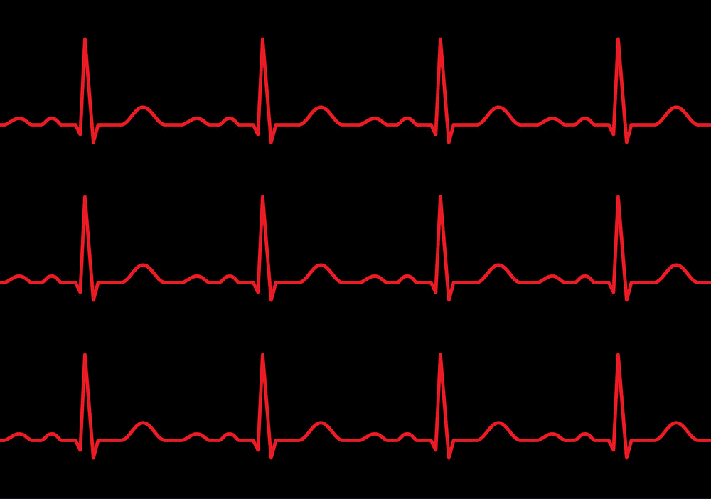 Heartbeat line clipart 8